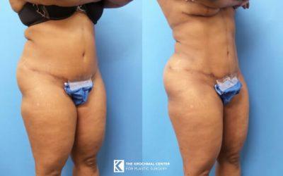 Liposuction New York